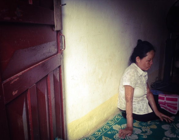 A blind acid burn survivor in her home in Cambodia.  Photo credit: Erin Bourgois